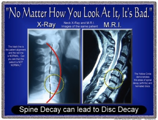 Herniated Disk Chiropractor in St. Paul