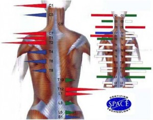 back pain chiropractor saint paul mn